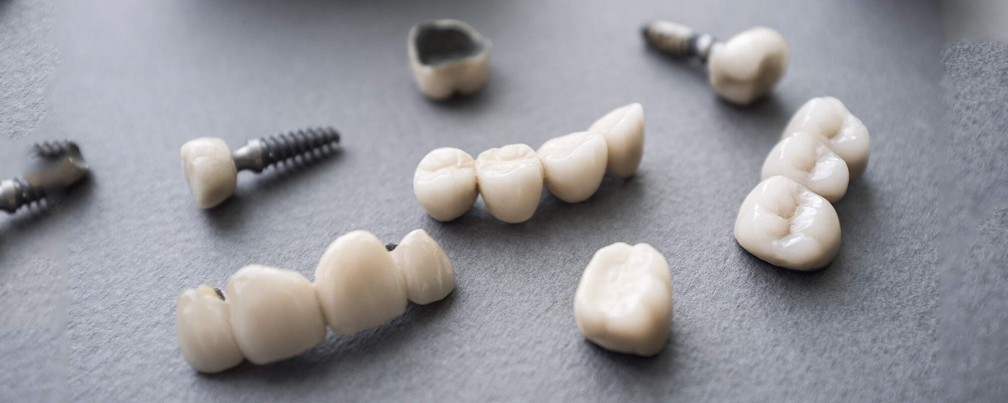 Dental implants on a dark gray table