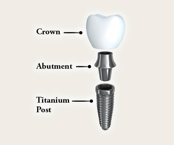 Photo of an implant breakdown graphic
